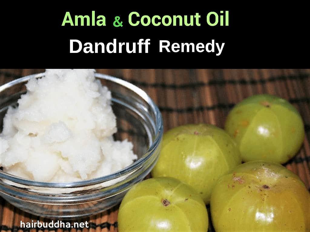 coconut oil and amla remedy for dandruff