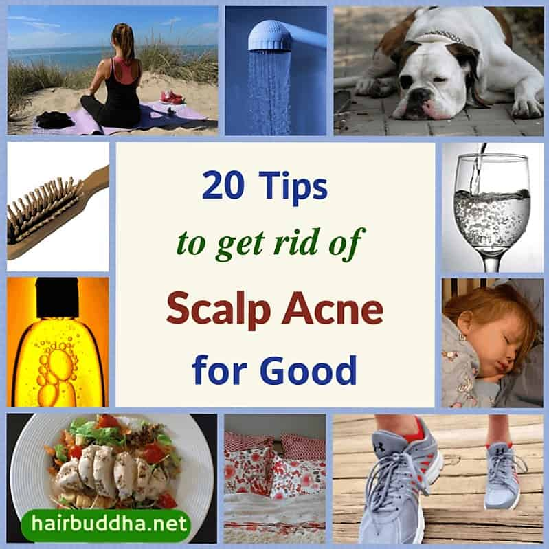 20 tip for scalp acne