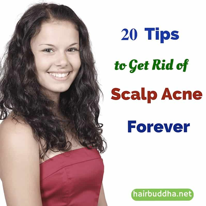 20 tips to get rid of scalp acne