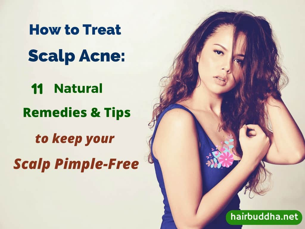 How to Treat Scalp Acne (2)