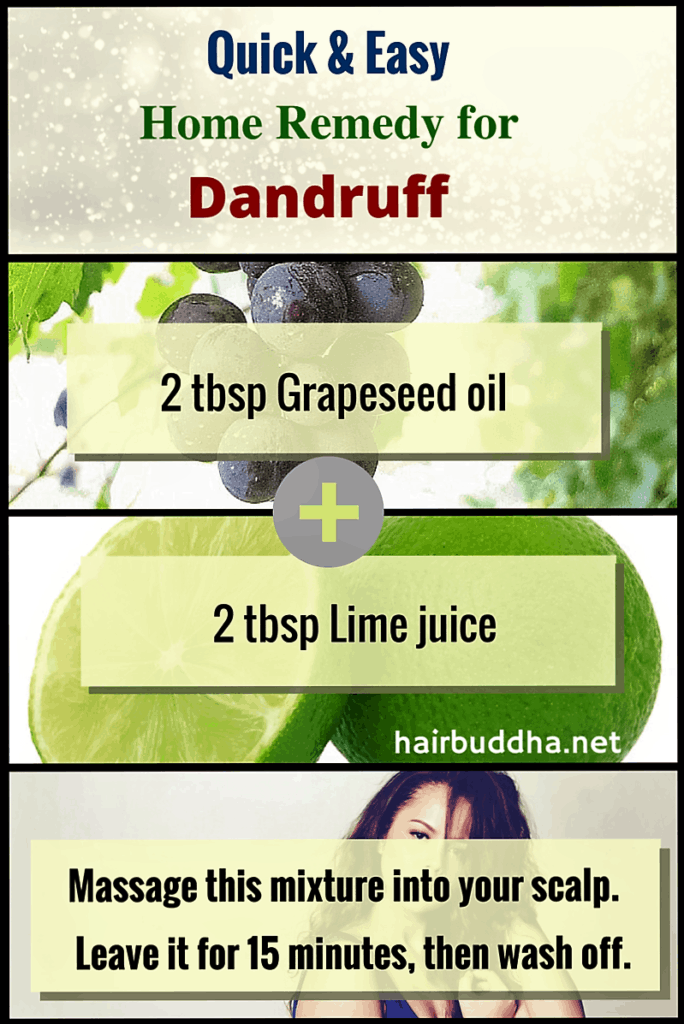 Ouick & Easy home remedy for dandruff