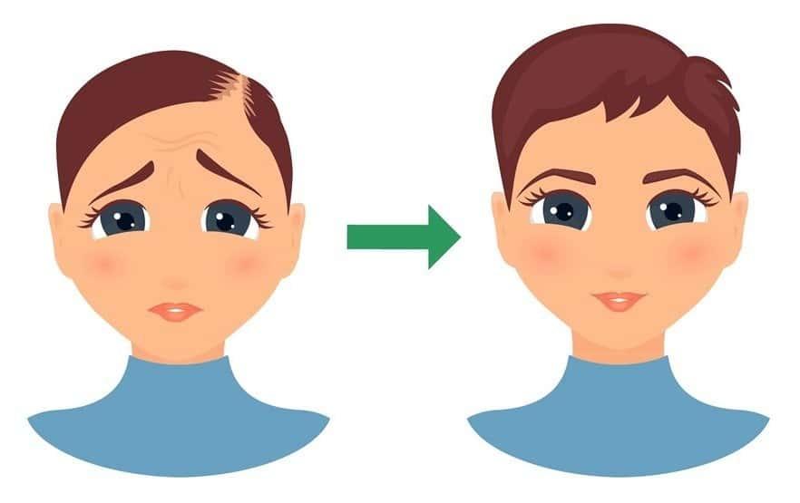Black Seed (Kalonji) Hair Oil: Kick-Start Hair Growth in
